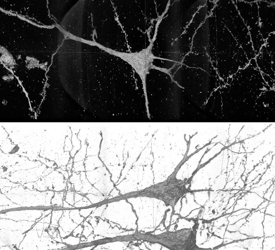 Usan aceleradores de partículas para estudiar las neuronas de personas con esquizofrenia